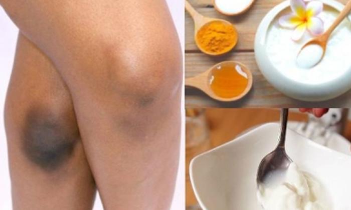 Curry Leaves Helps To Reduce Dark Knees-TeluguStop.com