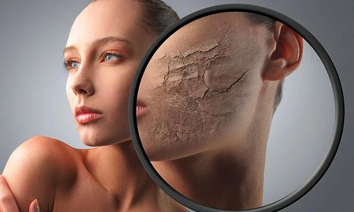 Remove Dead Skin Cells Dead Skin Cells Home Remedies-TeluguStop.com