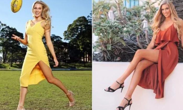 Australian Beauty Queen Insured Her Legs For 1 Million Dollars-TeluguStop.com