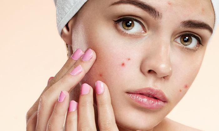 How To Get Rid Of Pimples During Periods-నెలసరి సమయంలో మొటిమలు వస్తున్నాయా..అయితే ఈ టిప్స్ మీకే-Latest News - Telugu-Telugu Tollywood Photo Image-TeluguStop.com