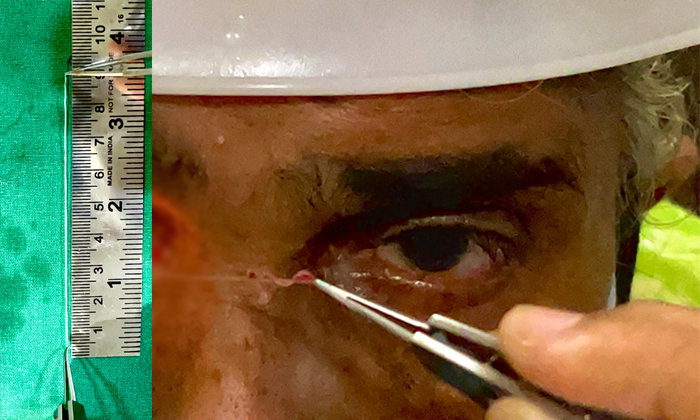 The Nine Centimeters Long Alive Insect Found In 70 Years Old Woman Eye In Karnataka-ఓరి దేవుడో: కంట్లో ఎంత పెద్ద బతికి ఉన్న పురుగో..-General-Telugu-Telugu Tollywood Photo Image-TeluguStop.com