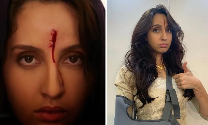 Bollywood Actress Nora Fatehi Injured In Bhuj Movie Shooting-TeluguStop.com