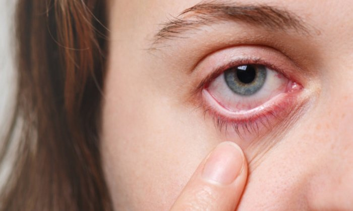 Telugu Covid Effect On Eyes, Covid Patient Symptoms, Cranial Focal Microscopy, Double Vision, Eye Test, Eyes Effect, Eyesight, Long Covid Patient, Nerve Fiber Damage, Viral News-Latest News - Telugu