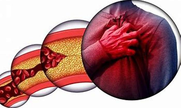 Albukhara Fruit Bad Cholesterol Latest News Benefits Of Albukhara Frui-TeluguStop.com