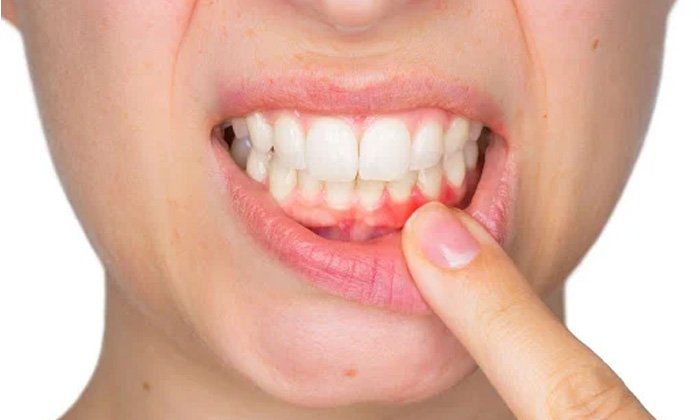 Home Remedies Bleeding Gums Aloe Vera Latest News Health Tips-TeluguStop.com