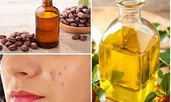 Jojoba Oil Pimples Benefits Of Jojoba Oil Latest News Skin Care-TeluguStop.com