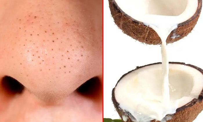 Coconut Mi Lk Helps To Reduce Blackheads Naturally-TeluguStop.com