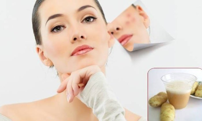 Skin Care Skin Care Tips Beauty Beauty Tips Home Remedies-TeluguStop.com